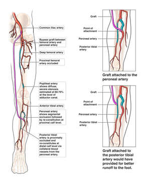 Arterial Blockages of the Left Leg with Placement of Femoral-peroneal Bypass