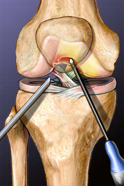 Arthroscopic Chondroplasty of the Knee