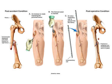 Right Femur Fracture with Surgical Fixation