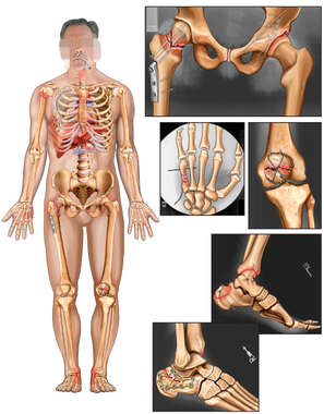 Male Skeletal Figure with Post-Operative Fixation of the Pelvis, Hand, Knee and Ankles Bilaterally