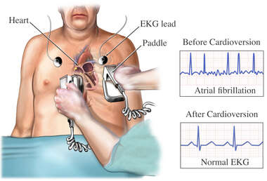 External Cardioversion