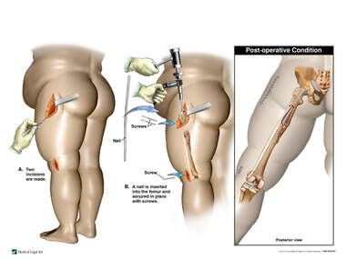 Intramedullary Fixation of the Left Femur