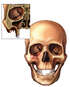 Skull with Multiple Facial Injuries