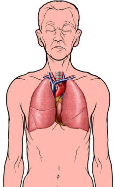 Anatomy of Lungs in a Healthy Elderly Man