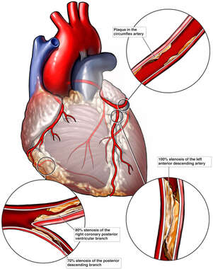 Initial Condition: Stenosis of the Coronary Arteries