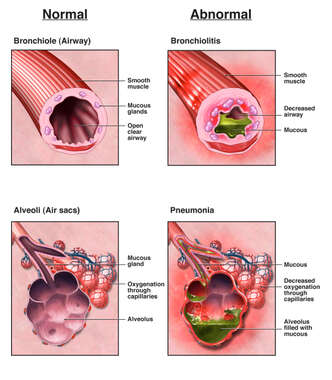 Bronchiolitis and Pneumonia