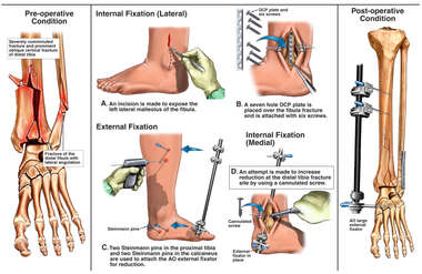 Left Ankle Fractures with Subsequent Surgical Fixation and Placement of an External Fixator
