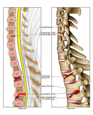 Sagittal and Lateral Views of Post-accident Cervical and Thoracic Spinal Injuries