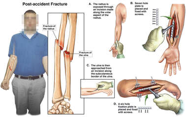 Arm Fracture Fixation