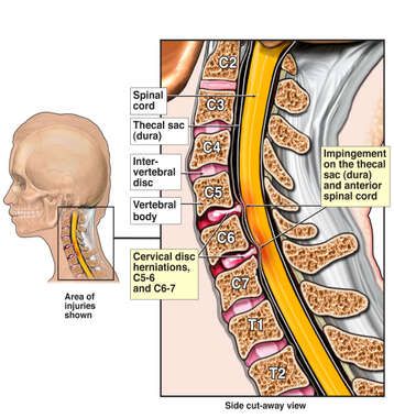 Cervical Disc Herniations C5-6 and C6-7