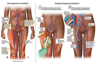 Post-operative Vascular Blockage with Surgical Bypass