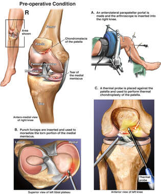 Knee Injuries with Arthroscopic Repairs