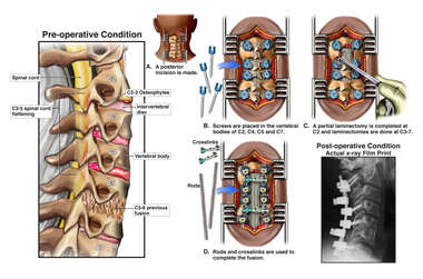 Severe Cervical Spinal Stenosis and Neck Pain with Multilevel Posterior Decompression and Fusion