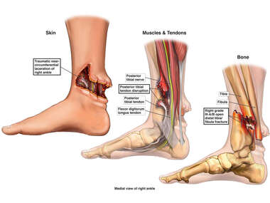 Right Foot and Ankle Injuries