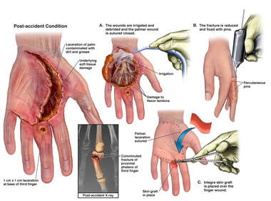 Crush Injuries of the Left Hand with Initial Surgical Repairs
