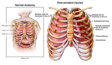 Post-accident Chest Injuries with Rib Fractures, Hemothorax and Pneumothorax