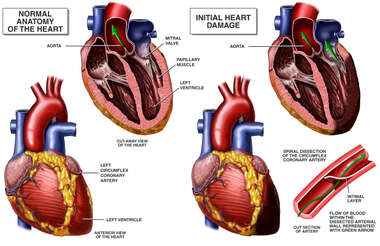 Normal Anatomy of the Heart vs. Heart with Blood Vessel Damage