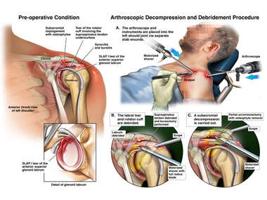 Left Shoulder Injuries with Surgical Repairs