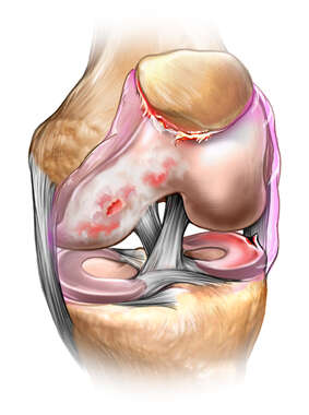 Chondromalacia of the Knee