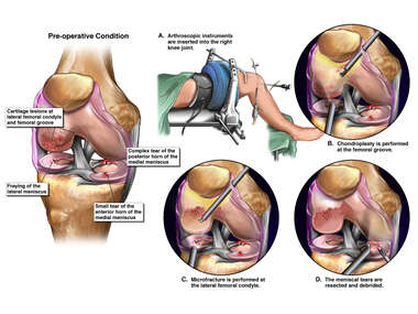 Traumatic Right Knee Injuries with Arthroscopic Repairs