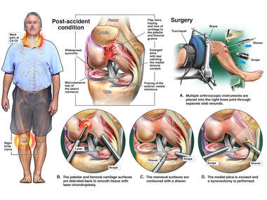 Post-Accident Injuries with Right Knee Arthroscopic Surgical Repairs.