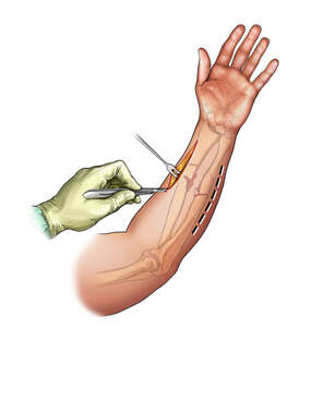 Forearm Incisions