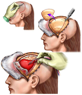Brain Surgery - Surgical Repair of Subdural Hematoma