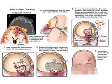 Skull Fracture with Underlying Brain Injury and Initial Surgical Repair
