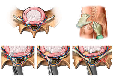 Lumbar Microdiscectomy and Decompression Surgery