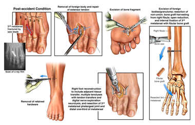 Removal of Foreign Body and Repair of Extensor Tendon