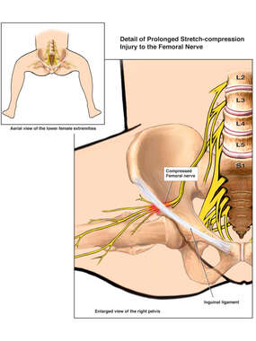 Femoral Nerve Injury Secondary to Prolonged Dorsal Lithotomy Position