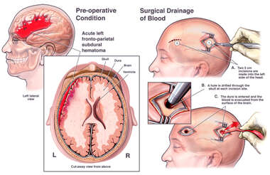Brain Surgery - Brain Hemorrhage with Surgical Bur Hole Drainage
