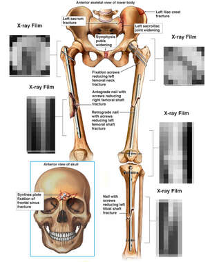 Skeletal Lower Extremites and Skull with Post-operative X-Ray Films