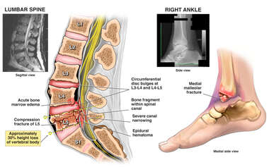Traumatic Ankle and Spine Fractures