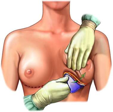 Placement of Breast Implant, Anterior View