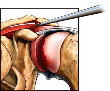 Arthroscopic Acromioplasty