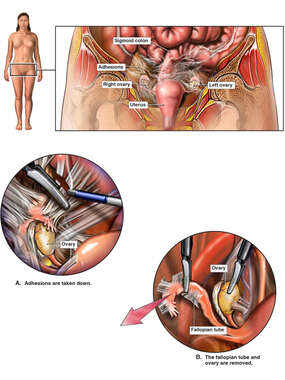 Procedure to Remove Adhesions and the Right Fallopian Tube and Ovary