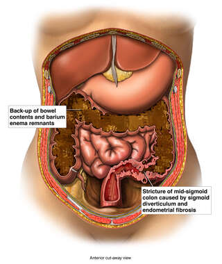 Female Abdomen with Pre-operative Bowel Obstruction
