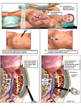 Correct vs Incorrect Placement of Trocar into Abdomen
