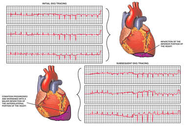 Progression of Heart Damage with EKG Tracing