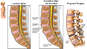 Lumbar Spine Injury - L2-3, L3-4 Disc Bulges and L4-5 Spondylolisthesis with Proposed Spinal Fusion Surgery