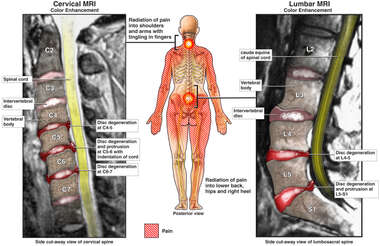 Spinal Injuries with Radiating Pain