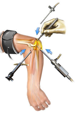 Arthroscope Insertion in Elbow