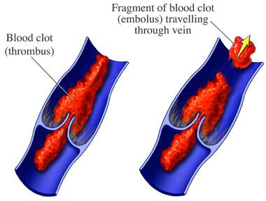 Venous Thrombus and Embolus