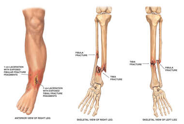 Bilateral Lower Leg Fractures