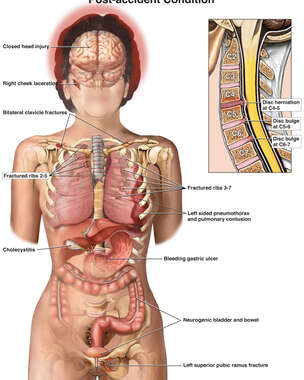 Female Torso with Post-accident Injuries to the Brian, Cervical Spine, Thorax, Abdomen