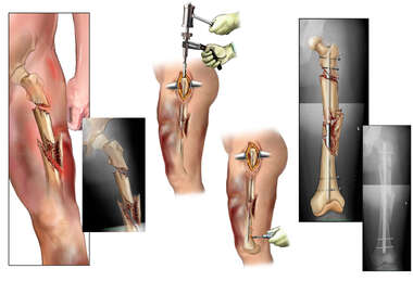 Complex Left Femur Fractures with Surgical Fixation