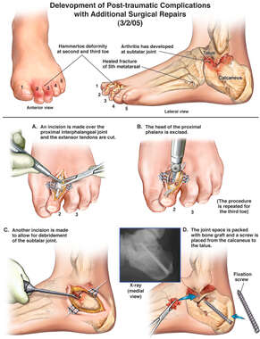 Delevopment of Post-traumatic Complications to Left Toes and Foot