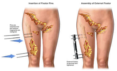 External Fixation of Femur