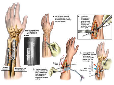 Nonunion of Left Fractured Ulna and Broken Hardware with Additional Surgical Repairs